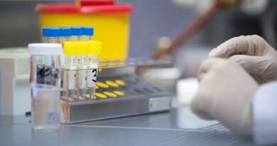 Безкоштовне тестування на коронавірус: У МОЗ назвали перелік осіб